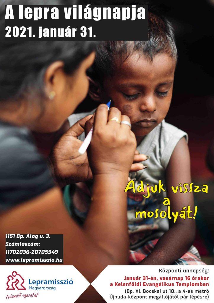 Január 31 - A lepra világnapja